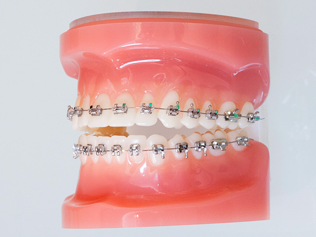 永久歯列期に使用する矯正装置