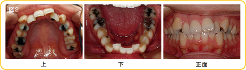 矯正治療の抜歯について