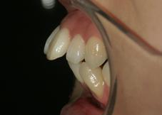 矯正治療の抜歯について2