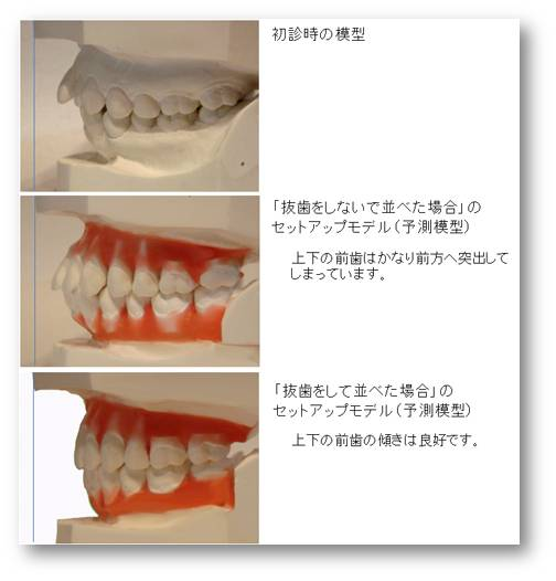 矯正治療の抜歯について3