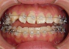 開咬の症例