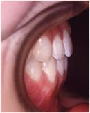 切端咬合の症例